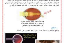 Photo of العين : عيوب الرؤية و وسائل الاصلاح طول النظر قصر النظر