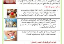 Photo of تسوس الأسنان -أسباب تسوس الأسنان – المراحل – العلاج و الوقاية