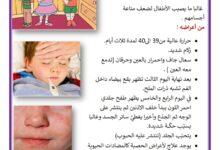 صورة الأمراض والوقاية منها: الحصبة ، مرض الحصبة ، الاعراض و الوقاية