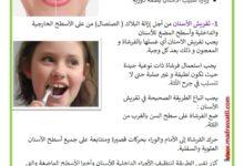 Photo of وقاية الأسنان – حماية الأسنان – المحافظة على الأسنان