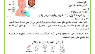 Photo of مرض الحصبة : الأعراض و الوقاية