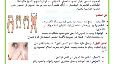 Photo of الأمرض الناتجة عن سوء التغذية السنة السادسة ابتدائي